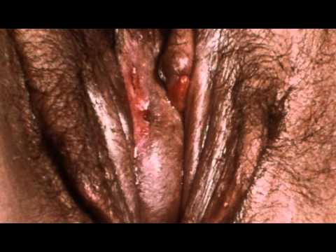 Transsexual Vagina Examination