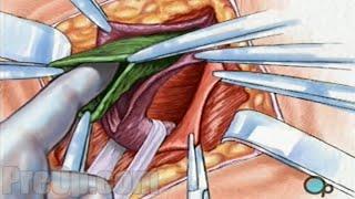 Hernia Repair Inguinal (Open) Surgery Patient Education