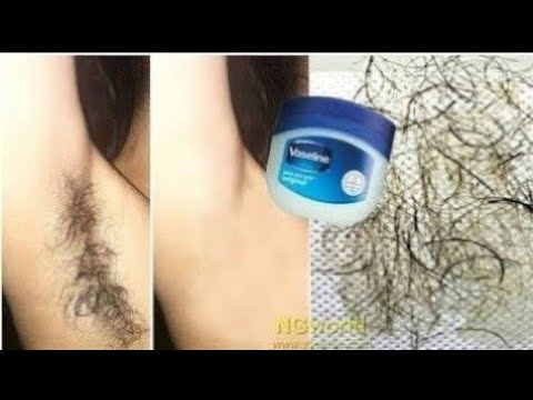 Xxx Mp4 In 5 Minutes Remove Unwanted Armpit Hair Permanently Unwanted Hair Will Never Grow Back Ll NGWorld 3gp Sex