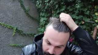 Hair transplant before after, Hair transplant Repair
