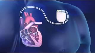 Implantatie van een ICD - Medtronic