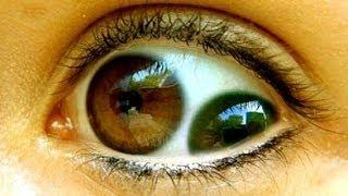 أغرب 10 عيون بشرية لن تصدق وجودها !