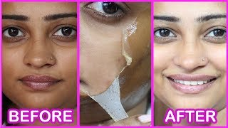 Remove Facial Hair and Suntan in 10 Minutes | Homemade Peel Off Mask - Crystal Clear Spotless Skin