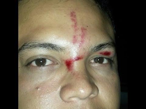 Accidente en el gusano Rodadero Santa marta