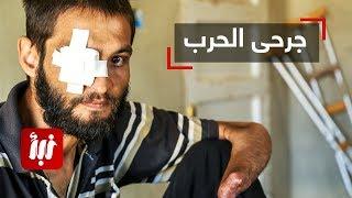 جمعة المسالمة أحد المقاتلين الجرحى من مدينة درعا يتحدث عن معاناة وقصته مع الإصابة