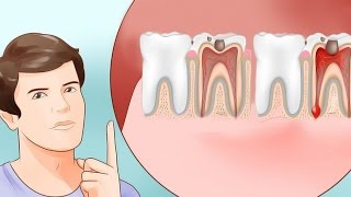 Как облегчить боль зубную в домашних условиях 622