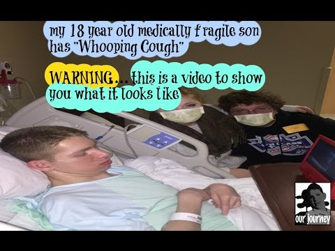 warning 18 year old with Whooping cough