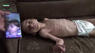 رهف طفلة من الغوطة حرمها الحصار من الدواء والعلاج وبدء جسمها بالتحول لهيكل عظمي
