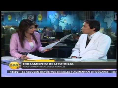 Aplican litotricia para eliminar cálculos renales en Hospital de la Solidaridad