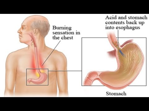 How Acid Reflux Works Animation Gastroesophageal Reflux Disease Symptoms Causes Video Endoscopy GERD