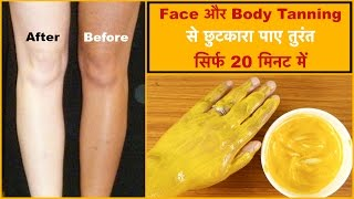 How to Remove Sun Tan from Face & Body || In 20 Minutes || Arpita Nath Hindi