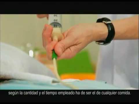 Cuidados enfermeria. Alimentación por sonda nasogástrica