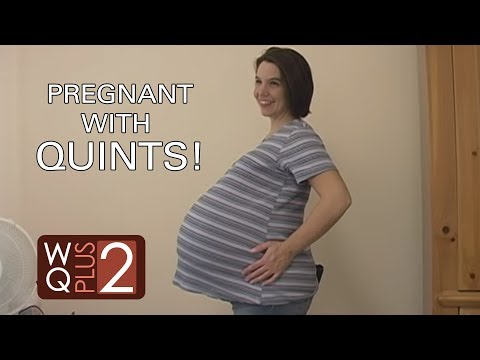 Quintuplet Mom at 33 Weeks and 2 Days