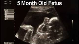 Pregnancy: Weeks 17-20 (Month #5)