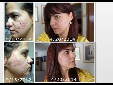 My PMD (personal microderm) experience #4 with Pictures!