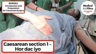 Caesarean section 1 – Hor dac iyo