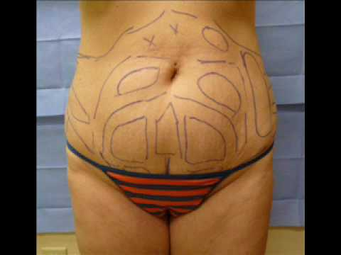 Laser Lipo Liposuction or Smart Lipo Before and After