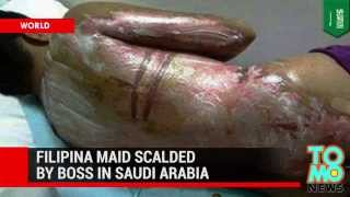 Gruesome attack photo - Filipino maid burned after Saudi boss drenches her with boiling water
