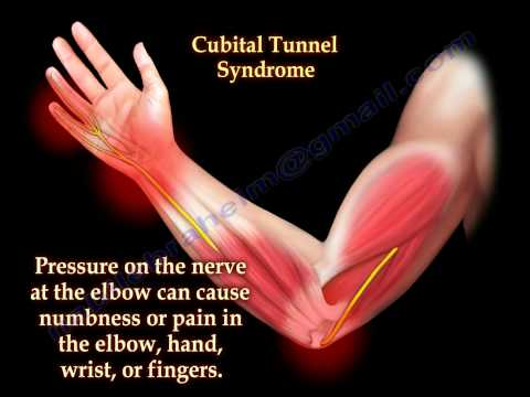 Xxx Mp4 Cubital Tunnel Syndrome Ulnar Nerve Entrapment Everything You Need To Know Dr Nabil Ebraheim 3gp Sex
