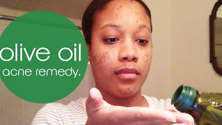 4 Min Olive Oil Acne remedy - BEAT your acne!