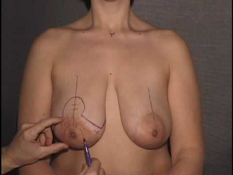 Breast Lift / Mastopexy Surgery