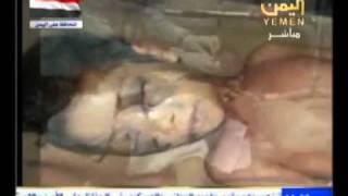 الطفلة شهد - قتلوها  قاتلهم الله