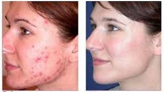 how to remove redness of acne - how to get rid of pimples fast