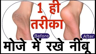 Crack heels home remedy in hindi 100%  Only One Way
