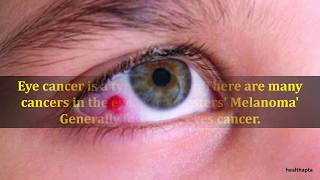 Symptoms of Eye Cancer
