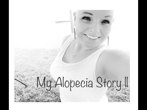My Alopecia Story ||