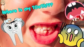 I LoST my TOOTH in SuMMer HoLiDaYs! SwiMmiNg PooL DaY 2 | GERTIT ToysReview