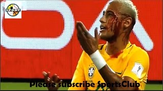 Top 10 Messi, Neymer and Ronaldo Horror Injur in Football Match Full HD || By SportsClub