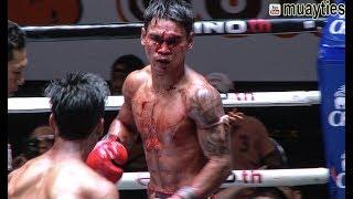 Muay Thai - Chokdee vs Messi (โชคดี vs เมสซี่), Lumpini Stadium, Bangkok, 5.9.17
