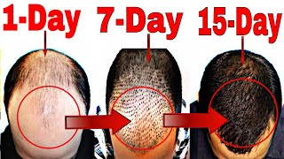 How to Stop Hair Fall Naturally | Grow Hair Faster(Men & Women)