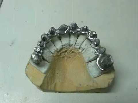 protesi fissa metallo ceramica