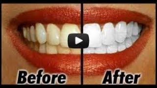 اجعلى اسنانك بيضاء وناصعة بطريقة سهلة \ تبييض الاسنان بوصفة طبيعية