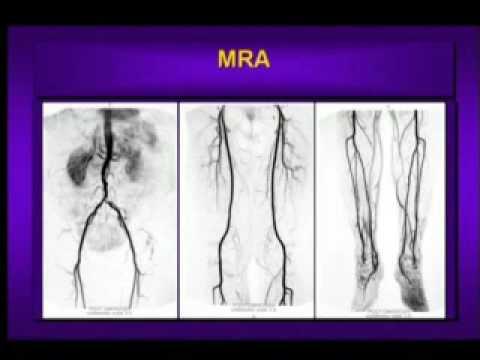 What is Peripheral Arterial Disease