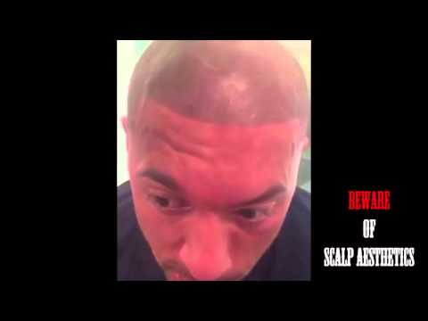 Beware of Scalp Aesthetics-negative review SMP scalp micropigmentation nightmare  part #2