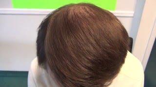 Top results  -Hair Transplant- Feller and Bloxham Hair Transplants- New York