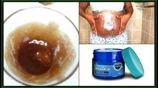 HOW TO USE VICKS VAPORUB TO GET RID OF ACCUMULATED BELLY FAT FAST BODY WRAP  Khichi Beauty