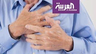 علماء كنديون يطورون طريقة لترميم أنسجة القلب بدون جراحة