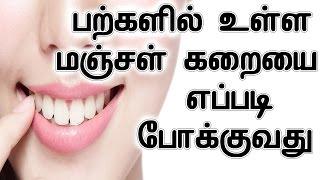 பற்களில் உள்ள மஞ்சள் கறையை எப்படி போக்குவது    Teeth Yellow Stain Removing Home Remedy In Tamil