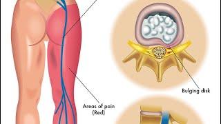 علاج الانزلاق بدون جراحه وبدون طبيب