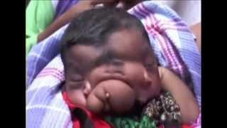 Indian girl born with elephant's trunk worshiped as Hindu god Ganesha