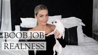 Should You Get A Boob Job? | My boob job story