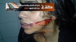الفتاة التي مُزٍق وجهها بمراكش تستنجد بالملك محمد السادس