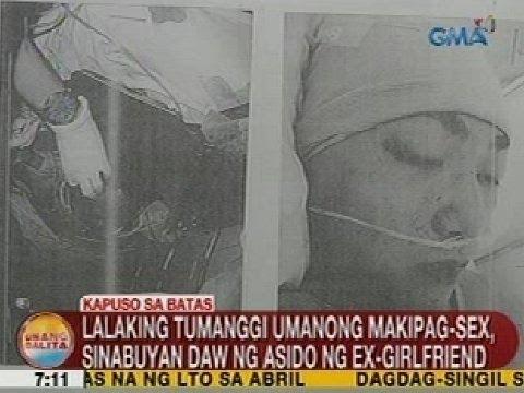 Xxx Mp4 UB Kapuso Sa Batas Lalaking Tumanggi Umanong Makipag Sex Sinabuyan Daw Ng Asido Ng Ex Girlfriend 3gp Sex