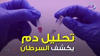 صدي البلد | فيديو جراف : تحليل دم يكشف السرطان