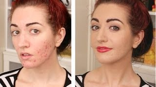 How To Cover Acne & Scarring • My Full Coverage Foundation Routine