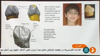 Iran Discovered Neanderthal in Kermanshah natural cave, National museum, Paleolithic era نئاندرتال